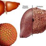 Điểm mặt những căn bệnh ở gan thường gặp nhất
