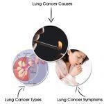 Kĩ thuật đông lạnh điều trị ung thư phổi