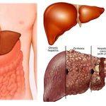 Vì sao một số người không thể điều trị ung thư gan