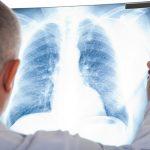 Cách để tầm soát được sớm bệnh ung thư phổi