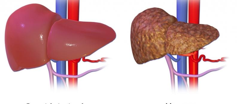 Cây thuốc nam chữa bệnh viêm gan B hiệu quả