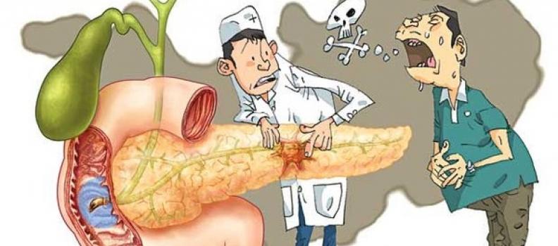Nguyên nhân và triệu chứng  của ung thư tuyến tụy?