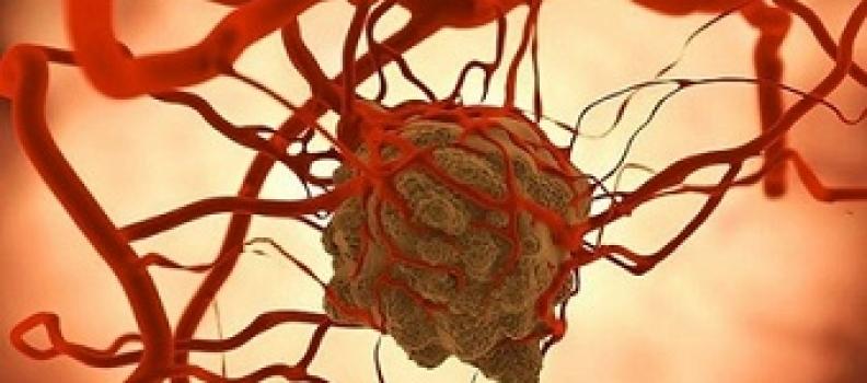 Sự thật về tế bào ung thư khiến bạn đứng hình