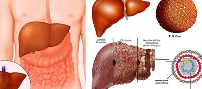 Bí quyết tự chẩn đoán bệnh gan cực chính xác